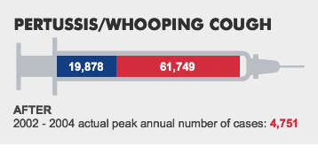 PERTUSSIS/WHOOPING COUGH. BEFORE:19,878 - WHAT IF:61,749 - AFTER:2002 - 2004 actual peak annual number of cases: 4,751